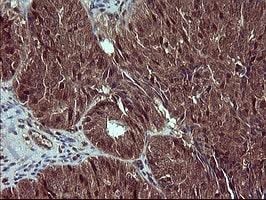 CSH1 Antibody in Immunohistochemistry (Paraffin) (IHC (P))