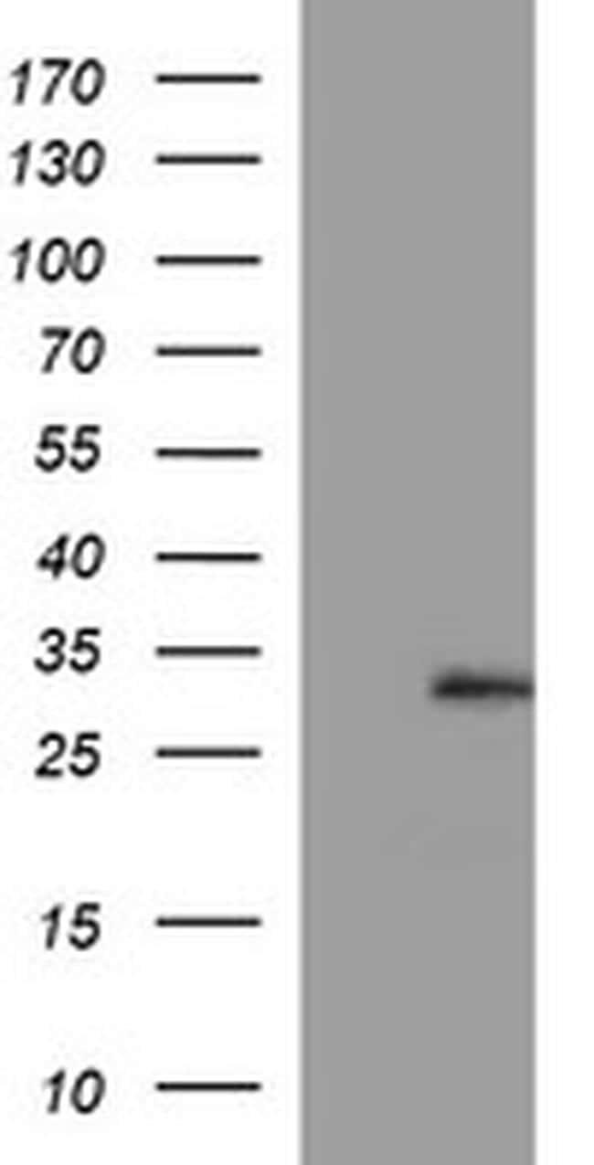 CSH1 Antibody in Western Blot (WB)