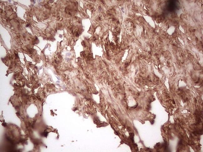 CSNK1G1 Antibody in Immunohistochemistry (Paraffin) (IHC (P))