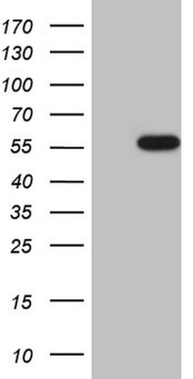 CSNK1G1 Antibody in Western Blot (WB)