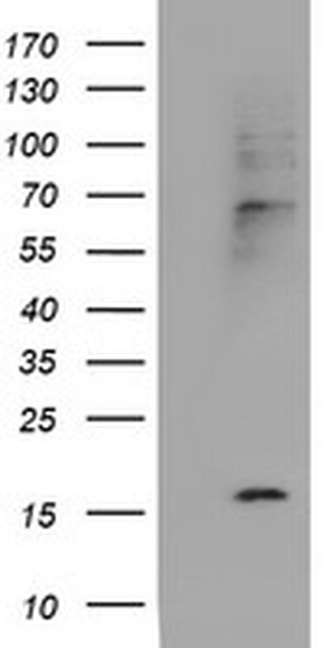 CST2 Antibody in Western Blot (WB)