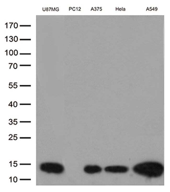 CSTB Antibody in Western Blot (WB)