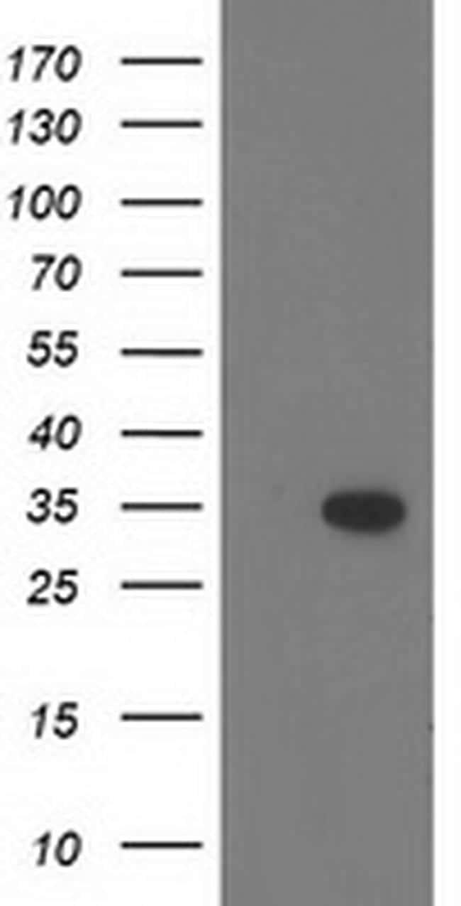 CTDSP1 Antibody in Western Blot (WB)