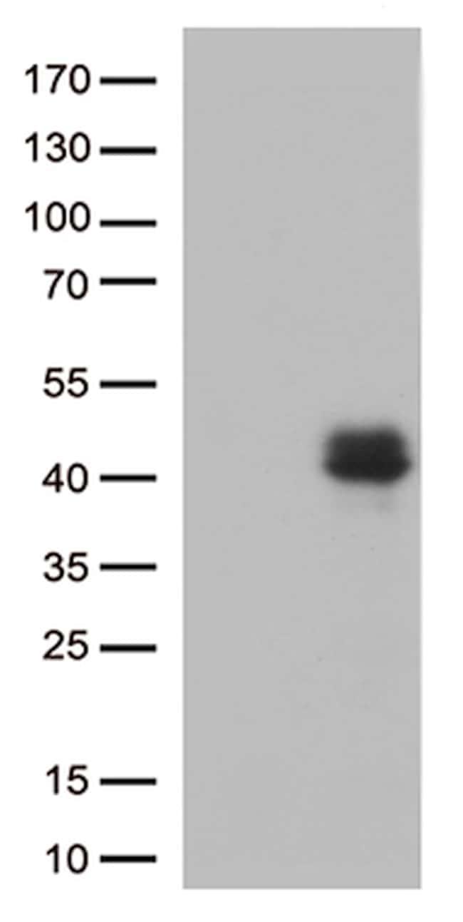 CTGF Antibody in Western Blot (WB)