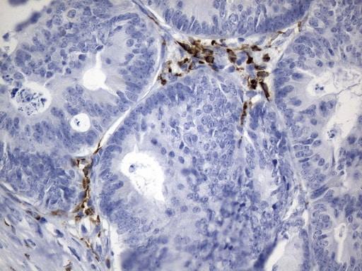 CTLA4 Antibody in Immunohistochemistry (Paraffin) (IHC (P))