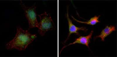 beta Catenin Antibody in Immunofluorescence (IF)