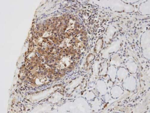 CYLD Antibody in Immunohistochemistry (Paraffin) (IHC (P))