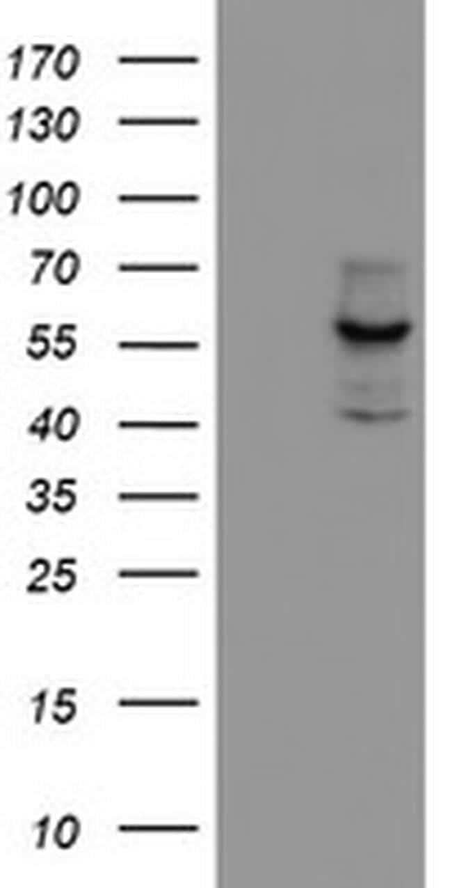 CYP17A1 Antibody in Western Blot (WB)
