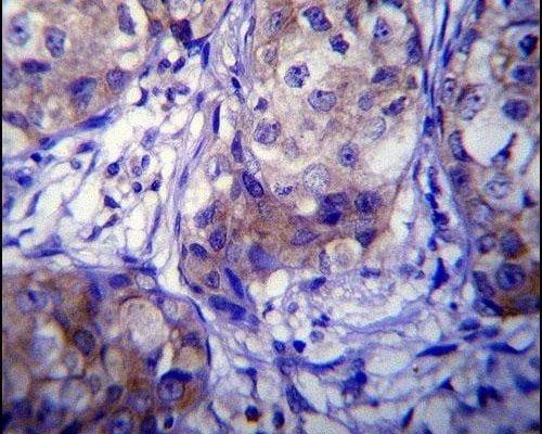 CYP1A1 Antibody in Immunohistochemistry (IHC)