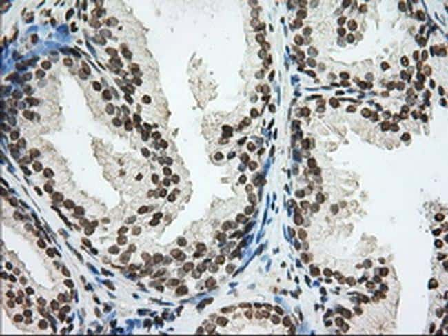 CYP1A2 Antibody in Immunohistochemistry (Paraffin) (IHC (P))