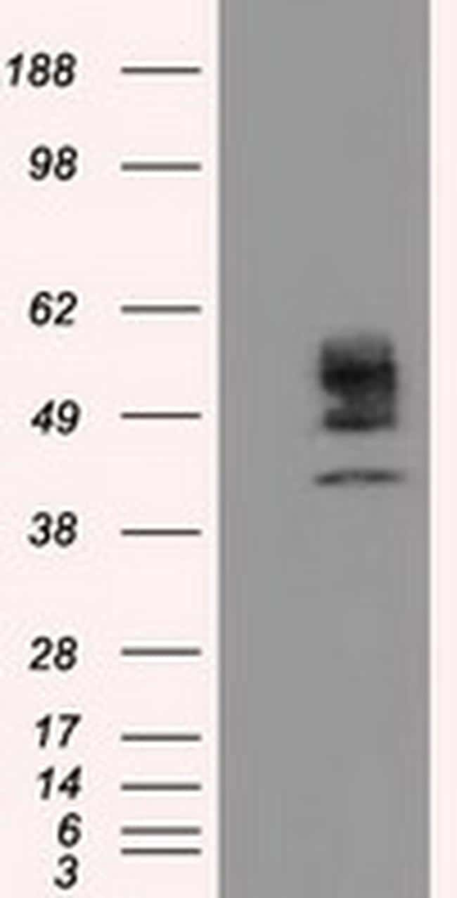 CYP1A2 Antibody in Western Blot (WB)