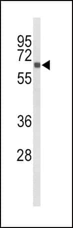 CYP27B1 Antibody in Western Blot (WB)