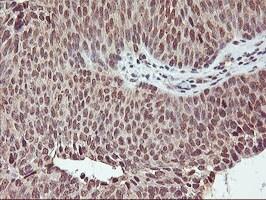 CYP2A6 Antibody in Immunohistochemistry (Paraffin) (IHC (P))