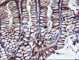 CYP2B6 Antibody in Immunohistochemistry (Paraffin) (IHC (P))