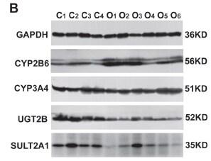 CYP2B6 Antibody in Western Blot (WB)