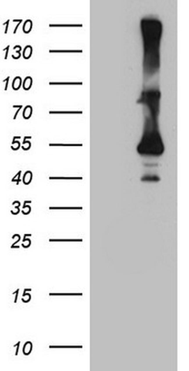 CYTH2 Antibody in Western Blot (WB)