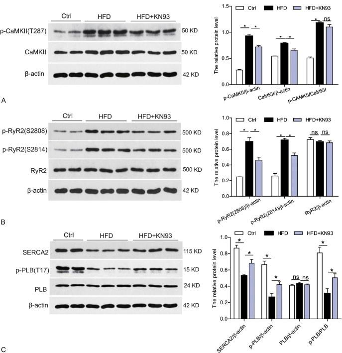 Phospho-CaMKII beta/gamma/delta (Thr287) Antibody