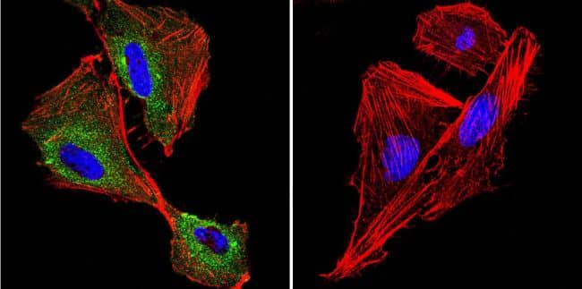 P-cadherin Antibody in Immunocytochemistry (ICC/IF)