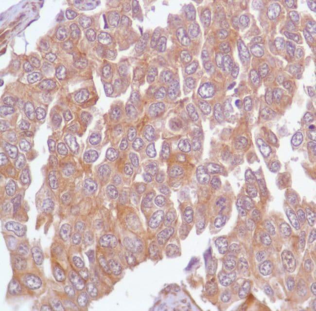 Calpain S1 Antibody in Immunohistochemistry (IHC)