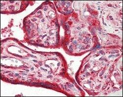 Calreticulin Antibody in Immunohistochemistry (IHC)