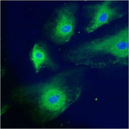 Calreticulin Antibody in Immunocytochemistry (ICC/IF)