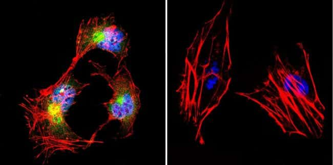 beta Catenin Antibody in Immunofluorescence (IF)