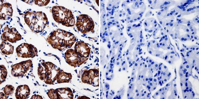 beta Catenin Antibody in Immunohistochemistry (IHC)