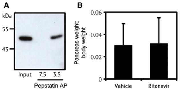 Cathepsin E Antibody