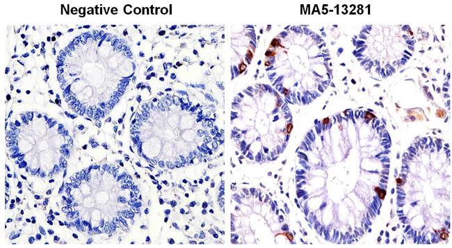 Chromogranin A Antibody in Immunohistochemistry (IHC)