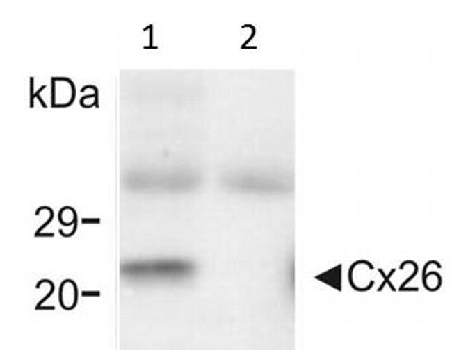 Connexin 26 Antibody in Western Blot (WB)