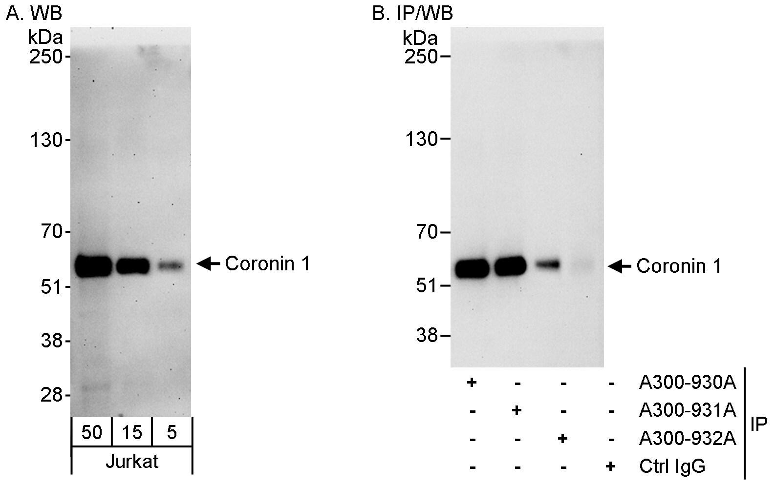 Coronin 1 Antibody in Western Blot (WB)