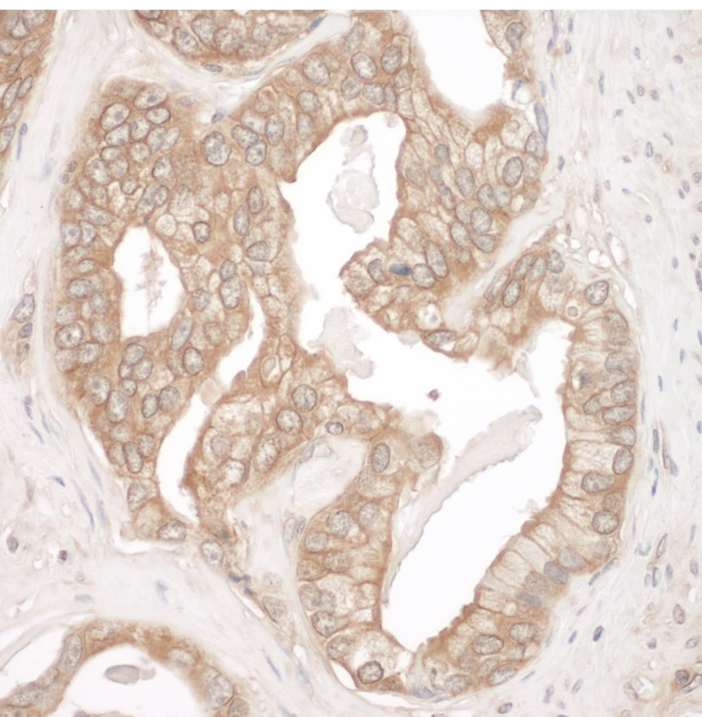 Cortactin Antibody in Immunohistochemistry (IHC)