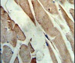 Creatine Kinase MB Antibody in Immunohistochemistry (IHC)