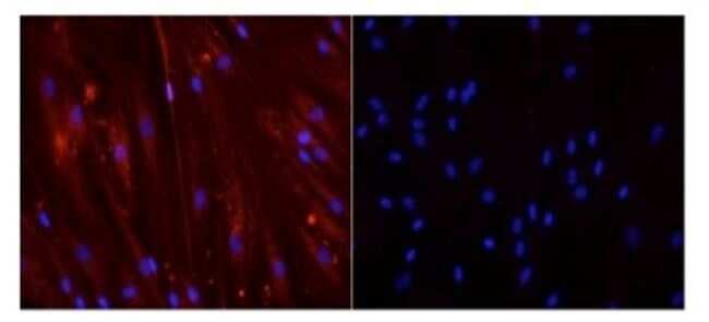 Myogenin Antibody in Immunofluorescence (IF)