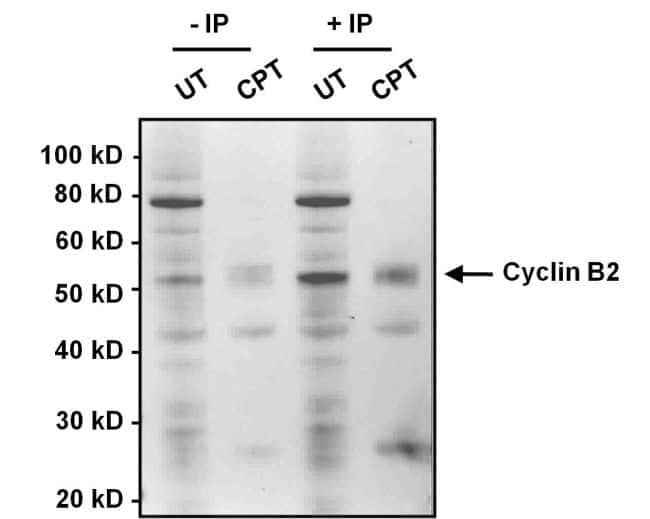 Cyclin B2 Antibody in Immunoprecipitation (IP)