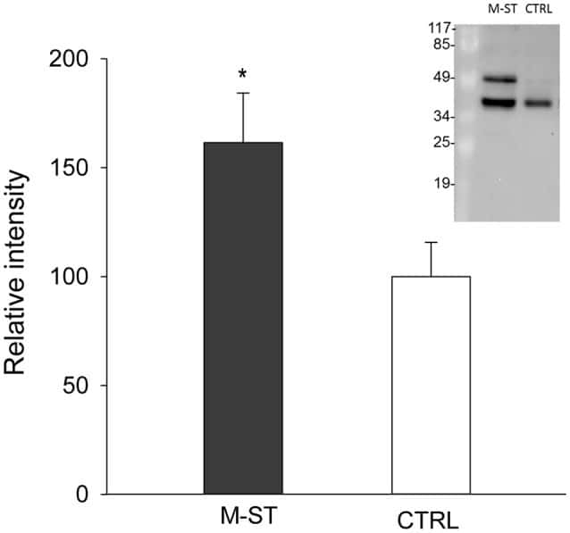 Cytokeratin 8 Antibody