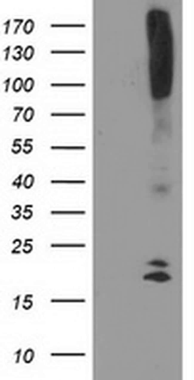 DAND5 Antibody in Western Blot (WB)