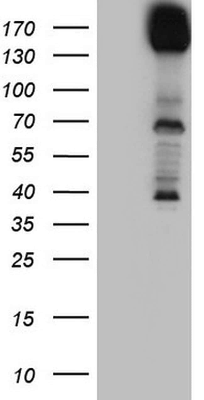 DCC Antibody in Western Blot (WB)