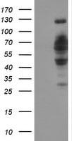 DCLRE1B Antibody in Western Blot (WB)
