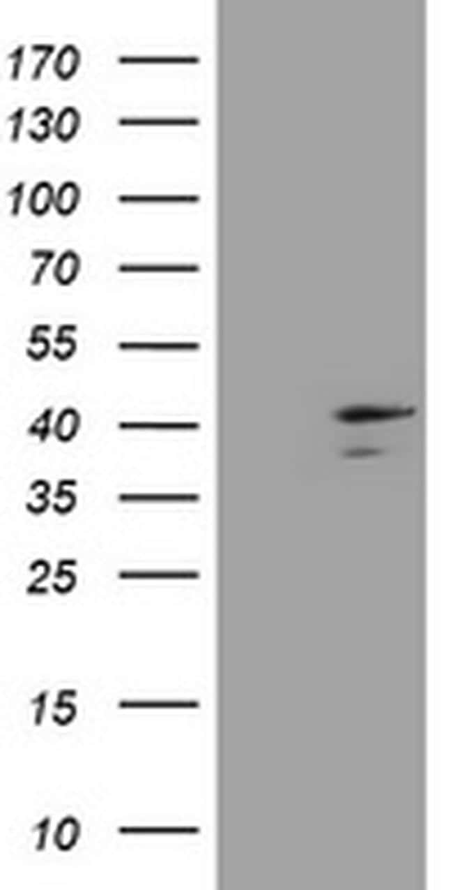 DCPS Antibody in Western Blot (WB)