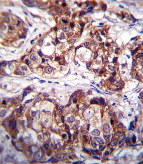 MCK10 Antibody in Immunohistochemistry (IHC)