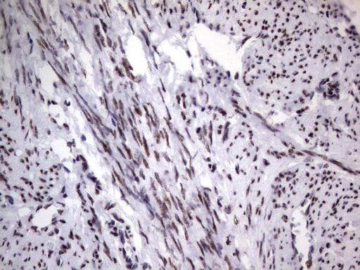 DDX56 Antibody in Immunohistochemistry (Paraffin) (IHC (P))