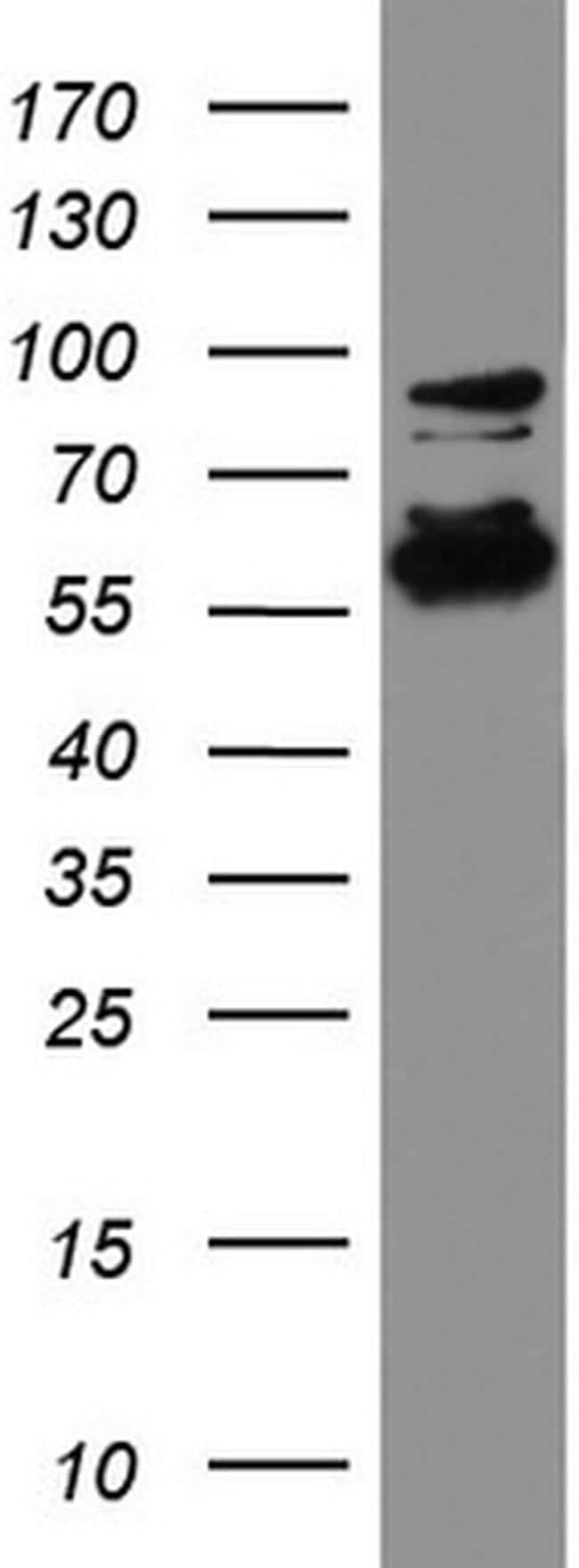 DDX56 Antibody in Western Blot (WB)
