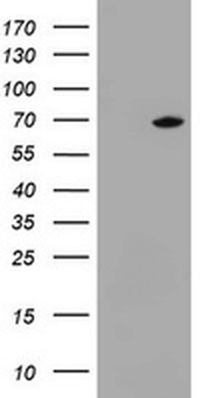 DDX59 Antibody in Western Blot (WB)