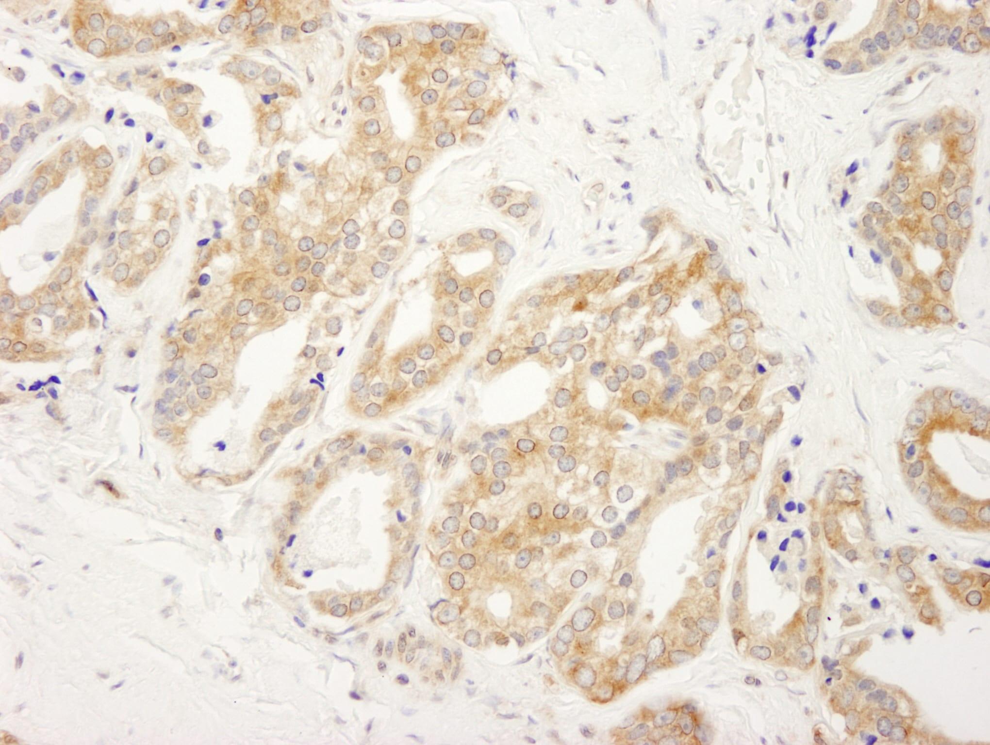 DDX6 Antibody in Immunohistochemistry (IHC)