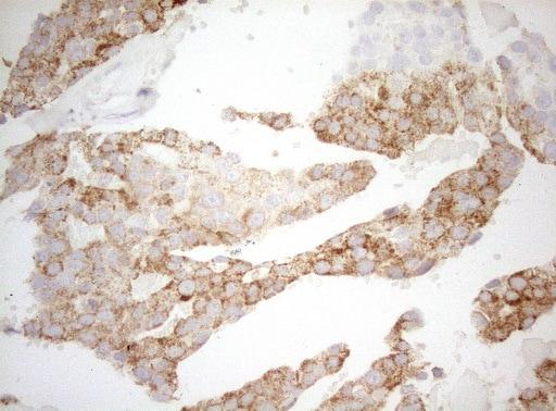 DECR1 Antibody in Immunohistochemistry (Paraffin) (IHC (P))