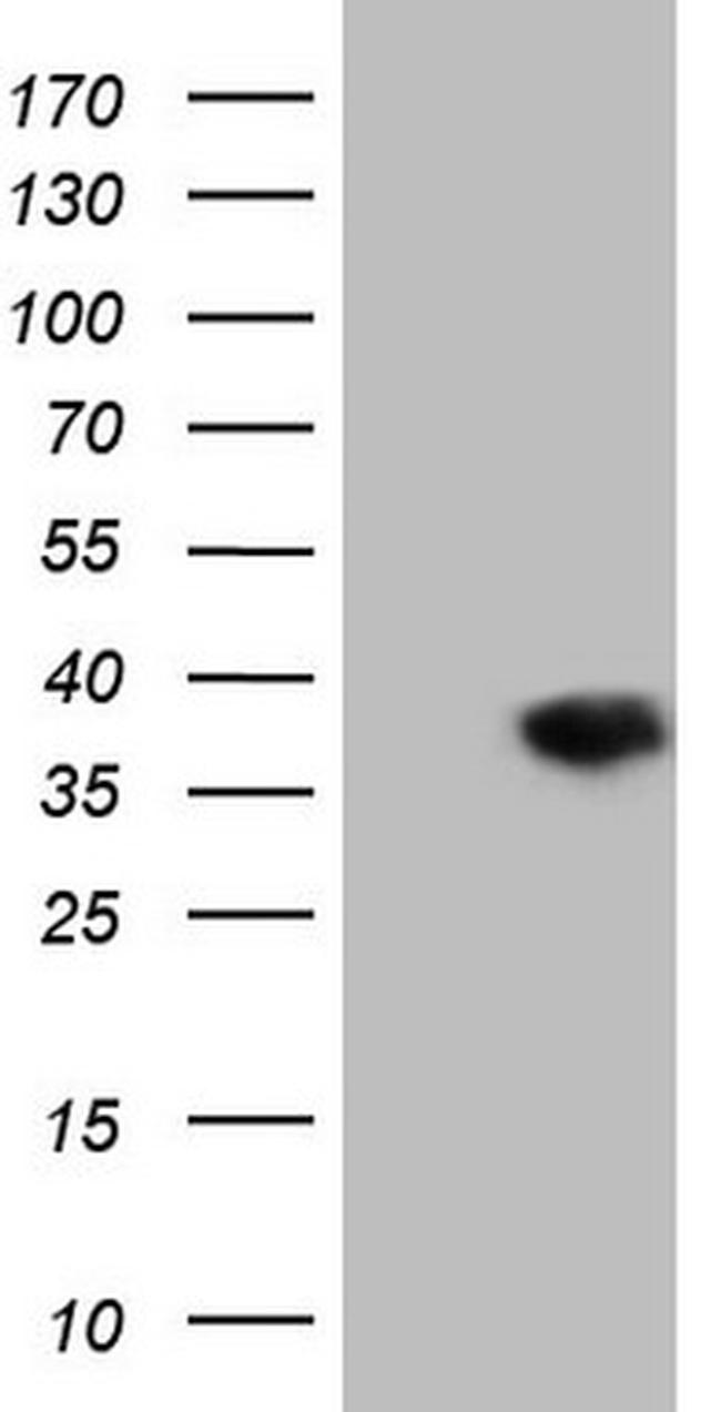 DECR1 Antibody in Western Blot (WB)