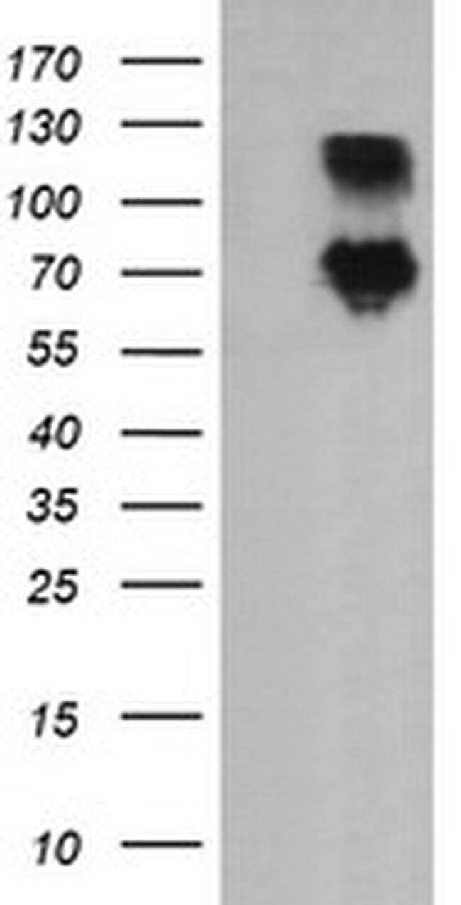 DEF6 Antibody in Western Blot (WB)
