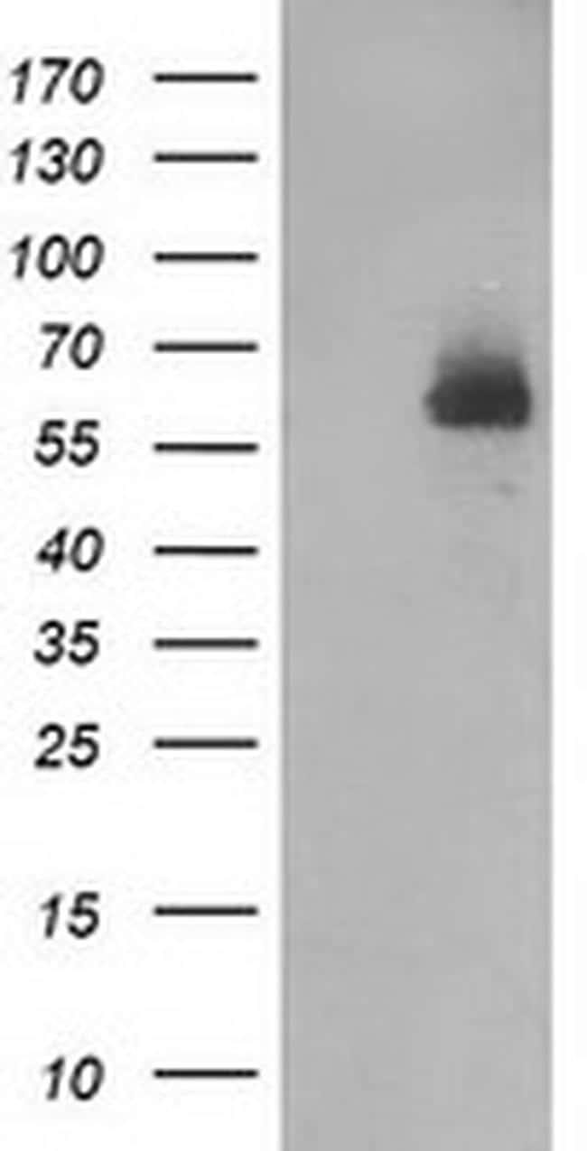 DEF8 Antibody in Western Blot (WB)