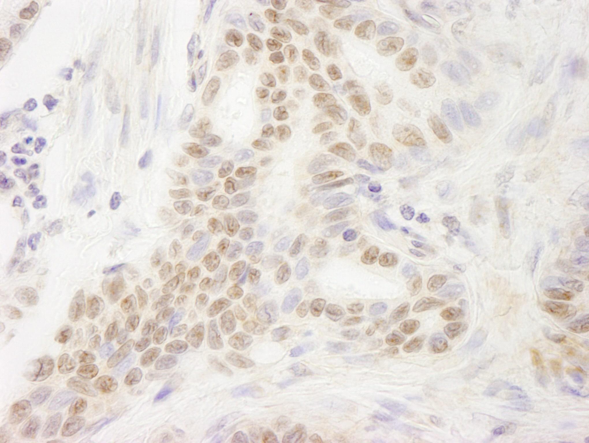 DEK Antibody in Immunohistochemistry (IHC)